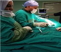 إجراء عملية نادرة لإصلاح تشوه خلقي بالحجاب الحاجز لطفل حديث الولادة ببنها