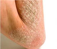 3 طرق للتخلص من مشكلة «جفاف الجلد»