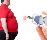 فيديو| استشاري علاج السمنة: البدانة السبب الرئيسي لمرض السكر والقلب