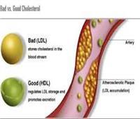 دراسة: أدوية خفض الكوليسترول قد تضعف العضلات والجهاز العصبي