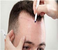 6 نصائح لنجاح عملية «زراعة الشعر»