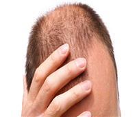 «طبيب تجميل» زراعة الشعر لم تعد تعالج مشاكل فروة الرأس فقط