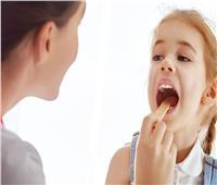 أسباب التهاب الحلق عند الأطفال وطرق علاجها