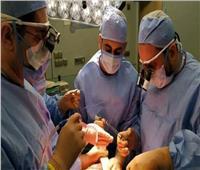 نجاح عملية استئصال ورم من رأس البنكرياس لمريض بمستشفى مصر للطيران