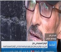 شاهد  لبناني بُغلق فمه بالخيط احتجاجاً على الأوضاع المعيشية