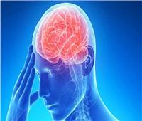 فيديو| تعرف على أسباب «السكتة الدماغية» وطرق الوقاية منها