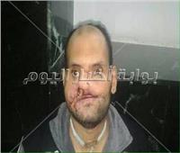 صور| رمضان عبد العزيز شوهت ملامحه طلقات خرطوش.. ويبحث عن علاج