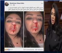 فيديو| الفنانة شاهيناز ضياء تكشف تفاصيل اعتداء زوجها عليها