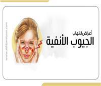 إنفوجراف   تعرف على أعراض التهاب الجيوب الأنفية الحاد