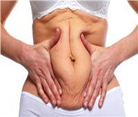 تفاصيل عملية شفط الدهون.. اختبارات وأشعة سينية