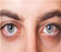 تطوير علاج جديد لمرض جفاف العين الشديد