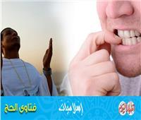 فتاوى الحج| ما حكم من قضم ظفرًا من أظافره ناسيا وهو مِحرم؟