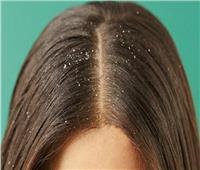 3 وصفات طبيعية للتخلص من «قشرة الشعر»