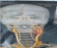 استئصال ورم «الجسم السباتي» لمريضة بالمستشفى التعليمي بطنطا