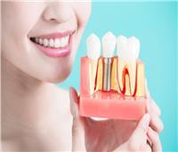 طبيب استشاري يوضح عوامل نجاح زراعة الأسنان