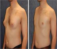 طبيب استشاري يوجه نصائح حول عملية تصغير الثدي عند الرجال؟