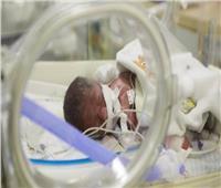 أطباء ليبيون يستأصلون كلى طفلة رضيعة بعد ولادتها بـ18 ساعة