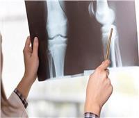 اليوم العالمي لهشاشة العظام| «التين والمشمش المجفف» للوقاية