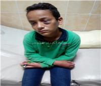 طالب يعتدي على زميله بـ «خاتم» ويصيبة بعينه داخل مدرسة بالغردقة