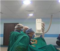 للقضاء على قوائم الانتظار.. افتتاح وحدة قسطرة القلب بمستشفى إسنا