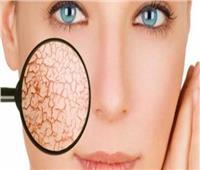 5 أعراض تخبرك بأنك تعانين من جفاف الجلد