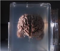 «تجميد الدماغ بالتبريد».. شركة روسية تفتح باب الخلود للمقتدرين