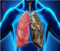 للمدخنين| استخدم زيت الخروع لتنظيف الرئتين.. وابتعد عن هذه الأطعمة