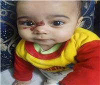 بعد القبض على والديها.. تفاصيل مأساوية في تعذيب الطفلة «ساجدة»