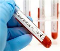 فيديو| المدير السابق لشركة خدمات نقل الدم تكشف تفاصيل علاج كورونا بالبلازما