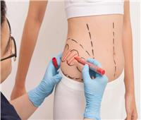 جراح تجميل يوضح الأساليب المستخدمة في علاج السمنة الموضعية