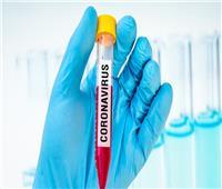 الدفاع الروسية: بدء المرحلة النهائية من اختبار لقاح مضاد لفيروس كورونا
