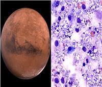 فطريات «تشيرنوبل» تتيح فرصة لحياة الإنسان على كوكب المريخ