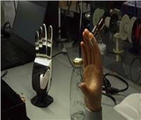 «إيسز».. ابتكار جديد يعيد الإحساس باللمس للأطراف الصناعية