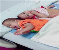 لجنة الاستغاثات الطبية بمجلس الوزراء تستجيب لإجراء جراحة لتوأمتين ملتصقتين عمرهما عام