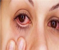 روشتة وقائية للتخلص من أمراض العين في فصل الخريف