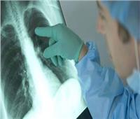 دراسة: «كورونا» أكثر خطرا على مرضى سرطان الرئة