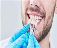 """ابتكار جديد لحل مشاكل """"مينا الأسنان"""""""