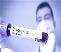 الصحة الأردنية: تسجيل 2648 إصابة جديدة بـ«كورونا» خلال الـ24 ساعة الماضية