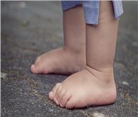 للأمهات.. تعرفي على سبب تقوس القدمين لطفلك