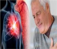 جراح أوعية دموية يحذر من التدخين والكوليسترول: يسببان انسداد الشرايين
