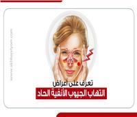 إنفوجراف | أعراض التهاب الجيوب الأنفية الحاد.. تعرف عليها