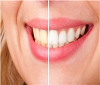 7 طرق تساعدك على تبييض أسنانك