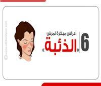إنفوجراف  6 أعراض مبكرة لمرض «الذئبة»