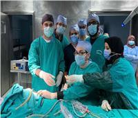 جراحة نادرة لرضيع عمره ٥ أيام بالمستشفى التعليمي بطنطا