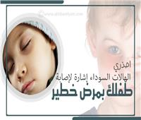 إنفوجراف | احذري.. الهالات السوداء إشارة لإصابة طفلك بمرض خطير