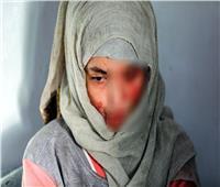 «مية النار».. أبشع جرائم العنف ضد المرأة.. والعقوبة بالسجن 5 سنوات