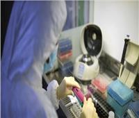 الوكالة الروسية للطب الحيوي تكشف عن 3500 طفرة لـ «كورونا»