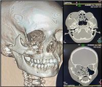 «الرعاية الصحية» تعلن نجاح أول جراحة وجه وفكين بمستشفى حورس بالأقصر
