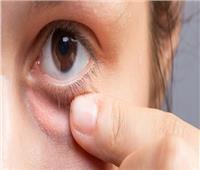 أبرزها قلة النوم.. أسباب انتفاخ جفن العين وطرق علاجها