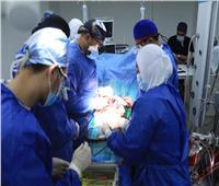 نجاح أول عملية قلب مفتوح في المجمع الطبي بالإسماعيلية